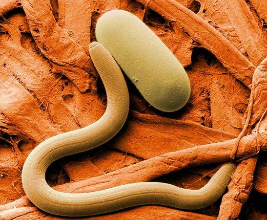 черви паразиты в саду